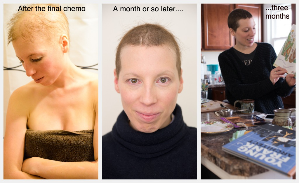 Hair Update 3 Months Post Chemo From Bald To Pixie The Mom Edit